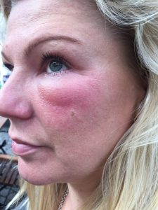 A wasp sting under the eye is an excellent alternative to Botox.